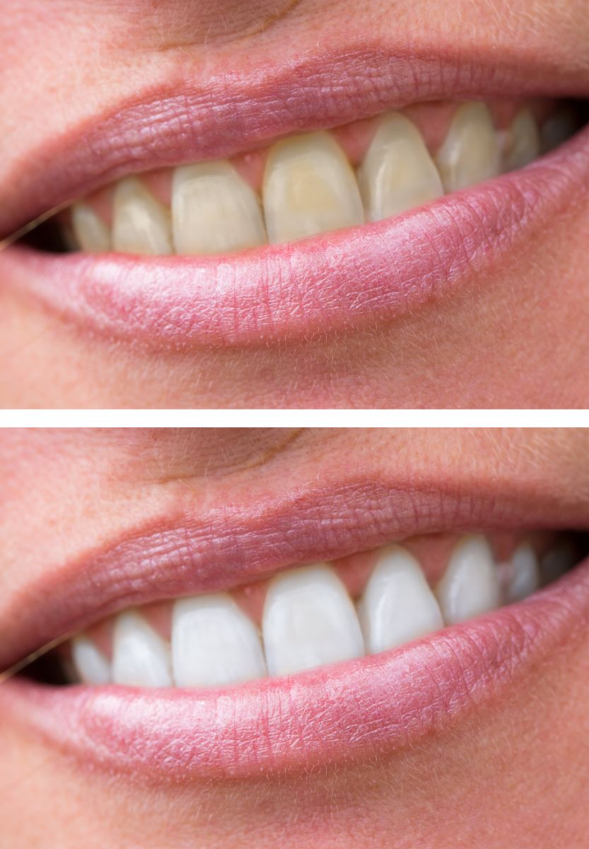 before and after teeth whitening in vorhees nj